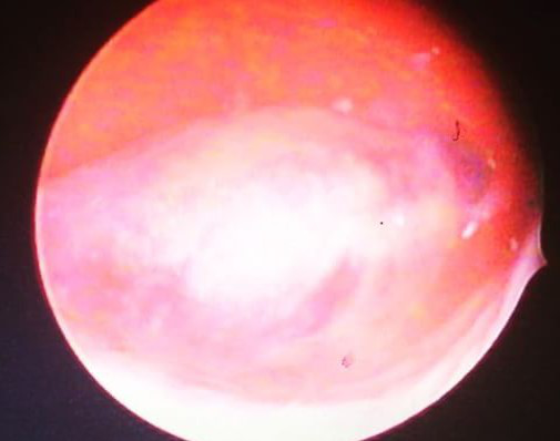 Diagnostic hysteroscopy