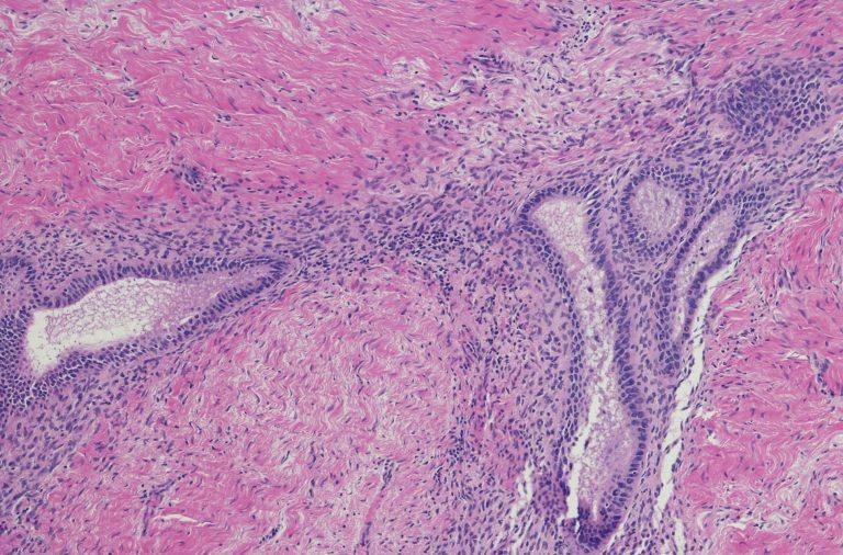 Tejido Endometriosis