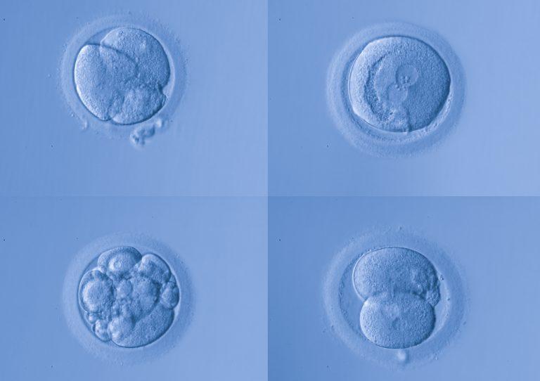 calsificacion de los embriones