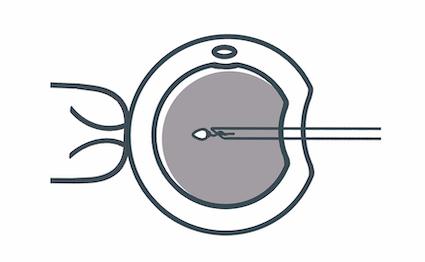 inyeccion-intracitoplasmatica