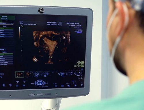 Malformaciones uterinas: ¿pueden tratarse mediante cirugía?
