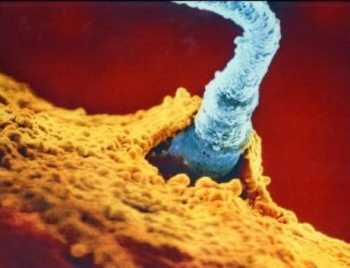 Infertilidad masculina ¿Cómo tratarla en reproducción asistida?
